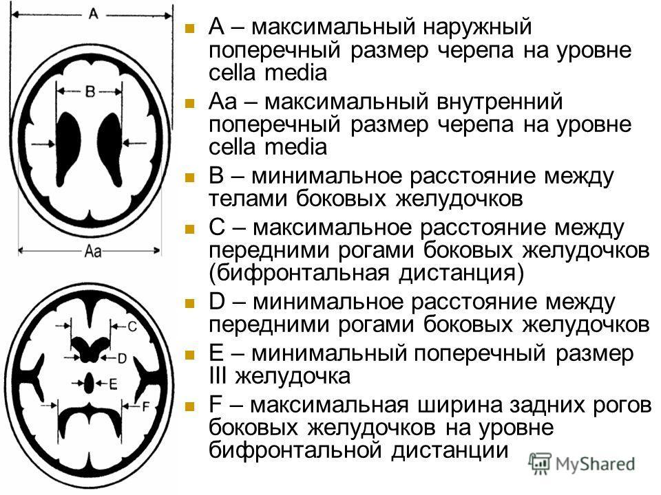 A – максимальный наружный поперечный размер черепа на уровне cella media Aa – максимальный внутренний поперечный размер черепа на уровне cella media B – минимальное расстояние между телами боковых желудочков C – максимальное расстояние между передним