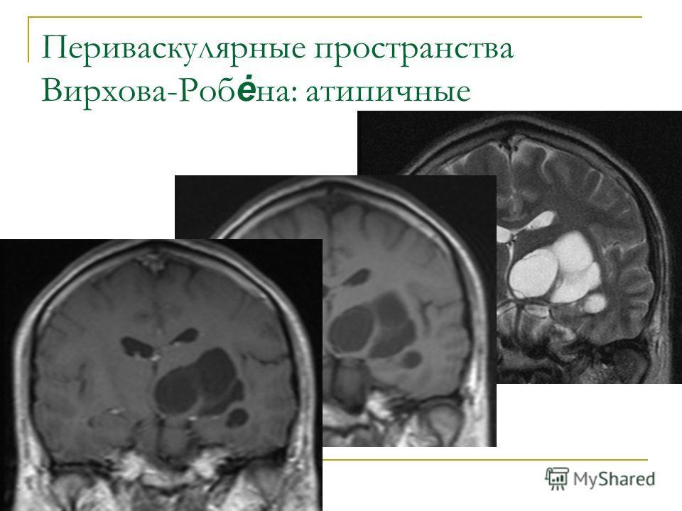 Периваскулярные пространства Вирхова-Роб ė на: атипичные