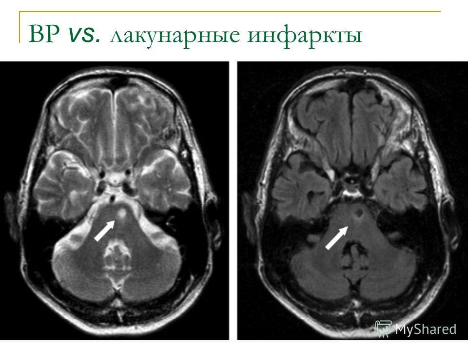 ВР vs. лакунарные инфаркты