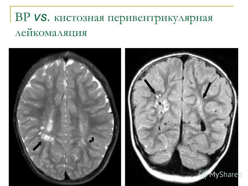 ВР vs. кистозная перивентрикулярная лейкомаляция