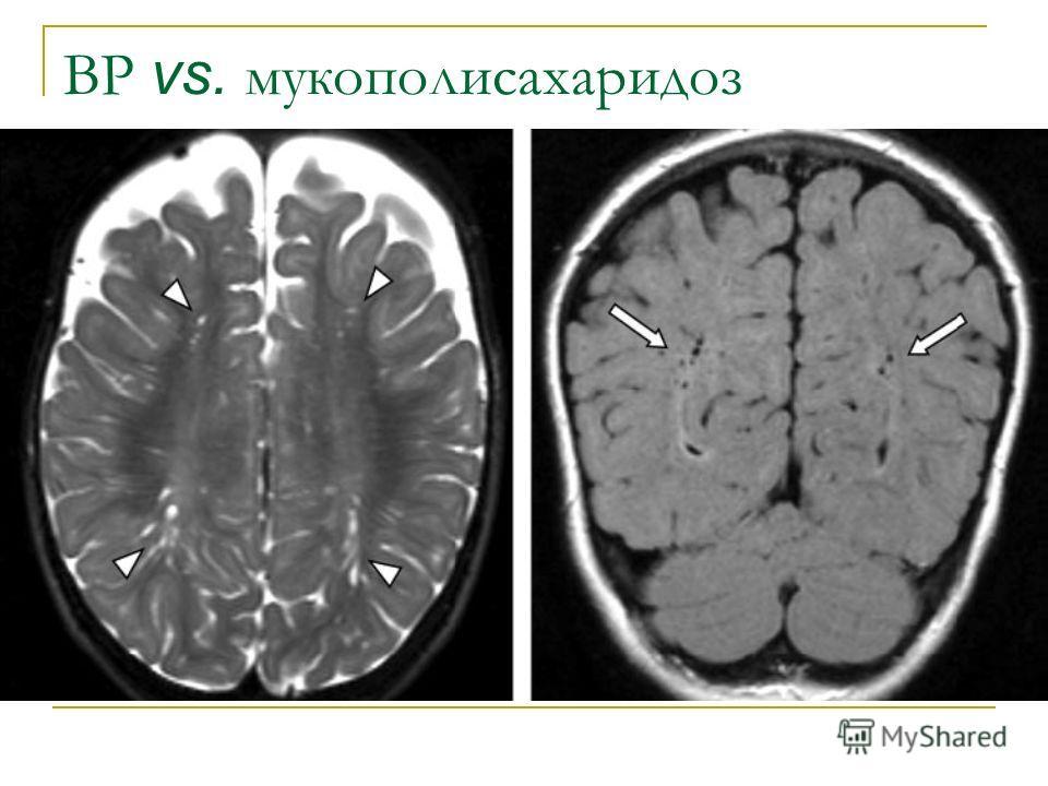 ВР vs. мукополисахаридоз
