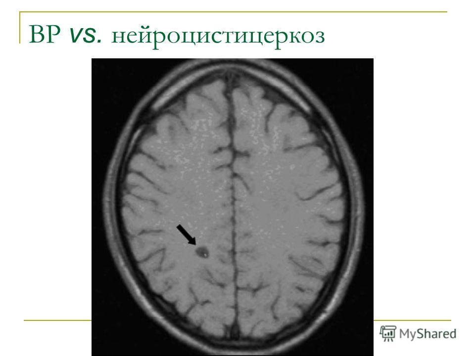 ВР vs. нейроцистицеркоз