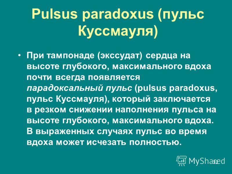 32 Pulsus paradoxus (пульс Куссмауля) При тампонаде (экссудат) сердца на высоте глубокого, максимального вдоха почти всегда появляется парадоксальный пульс (pulsus paradoxus, пульс Куссмауля), который заключается в резком снижении наполнения пульса н
