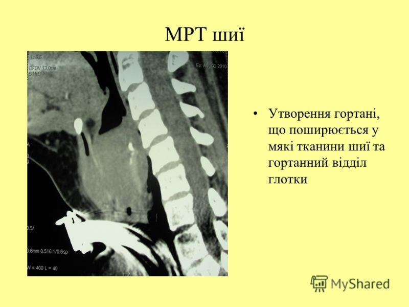 МРТ шиї Утворення гортані, що поширюється у мякі тканини шиї та гортанний відділ глотки
