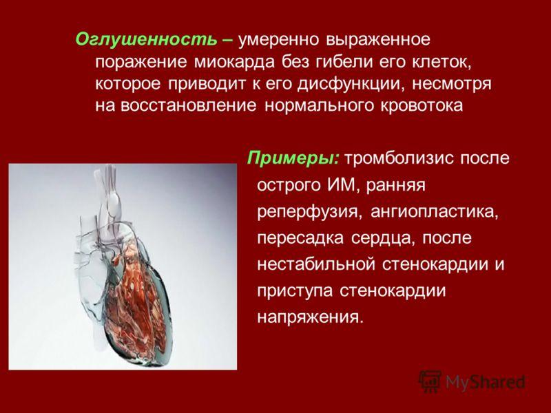 Оглушенность – умеренно выраженное поражение миокарда без гибели его клеток, которое приводит к его дисфункции, несмотря на восстановление нормального кровотока Примеры: тромболизис после острого ИМ, ранняя реперфузия, ангиопластика, пересадка сердца