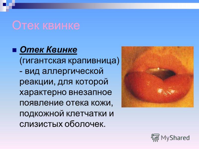 Отек квинке Отек Квинке (гигантская крапивница) - вид аллергической реакции, для которой характерно внезапное появление отека кожи, подкожной клетчатки и слизистых оболочек.