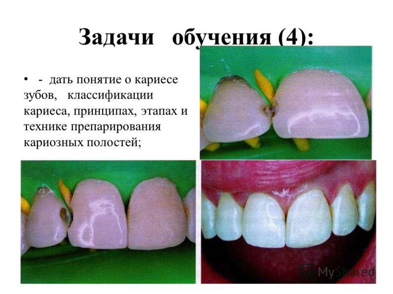 Задачи обучения (4): - дать понятие о кариесе зубов, классификации кариеса, принципах, этапах и технике препарирования кариозных полостей;