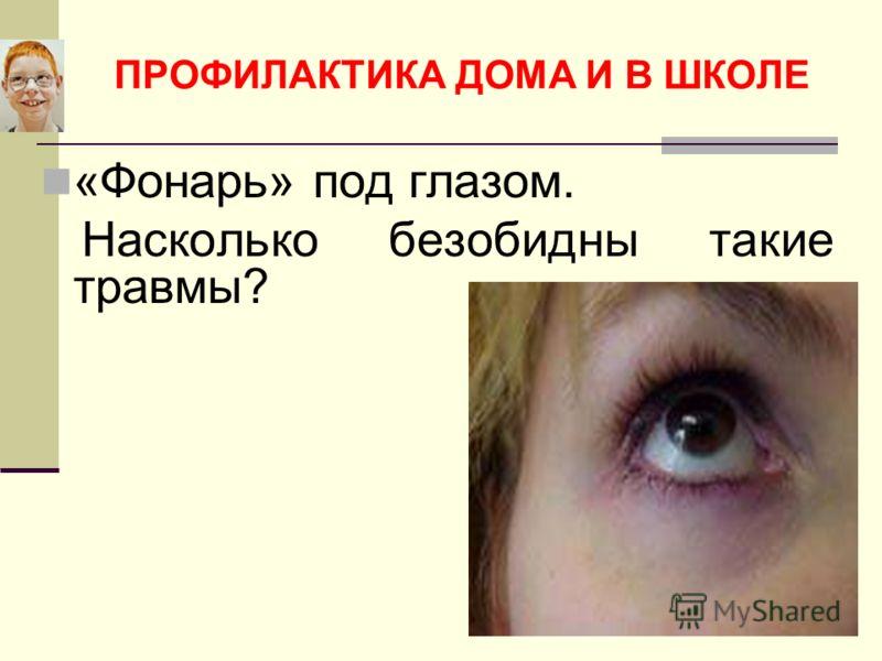 ПРОФИЛАКТИКА ДОМА И В ШКОЛЕ «Фонарь» под глазом. Насколько безобидны такие травмы?