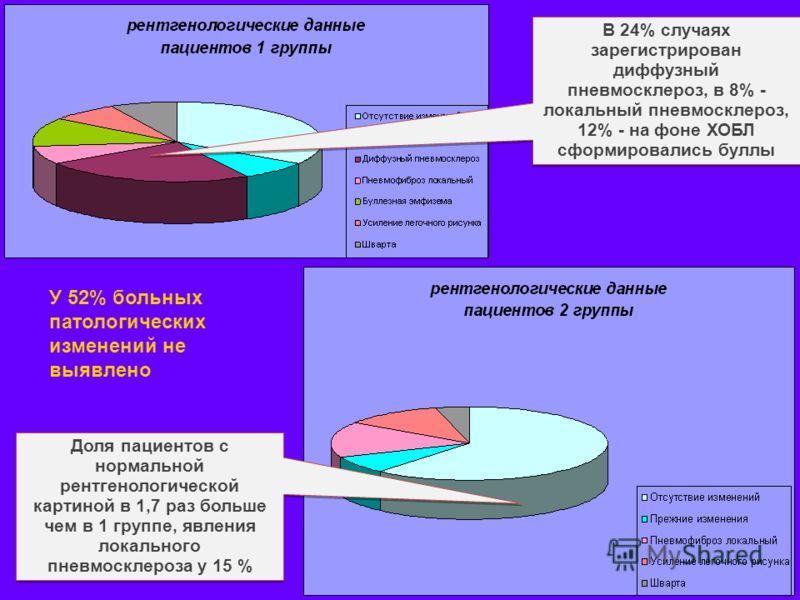В 24% случаях зарегистрирован диффузный пневмосклероз, в 8% - локальный пневмосклероз, 12% - на фоне ХОБЛ сформировались буллы Доля пациентов с нормальной рентгенологической картиной в 1,7 раз больше чем в 1 группе, явления локального пневмосклероза