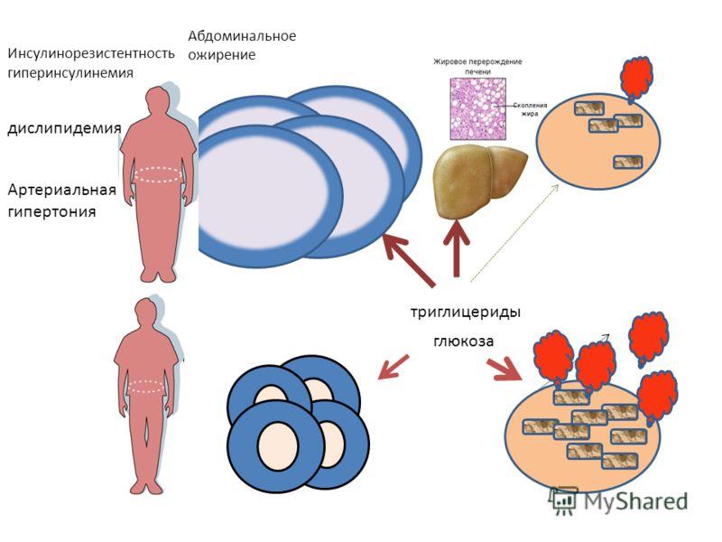 глюкоза триглицериды Абдоминальное ожирение Инсулинорезистентность гиперинсулинемия дислипидемия Артериальная гипертония