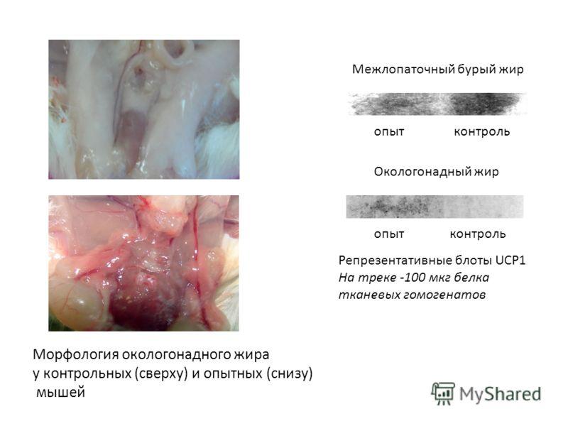 опытконтроль Межлопаточный бурый жир Репрезентативные блоты UCP1 На треке -100 мкг белка тканевых гомогенатов Окологонадный жир опытконтроль Морфология окологонадного жира у контрольных (сверху) и опытных (снизу) мышей