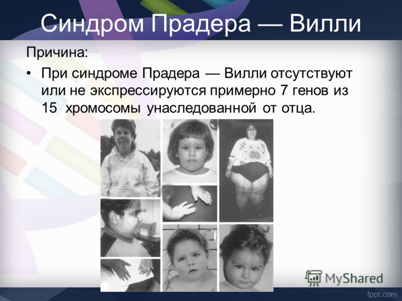 prader willi syndrom Prader - willi syndromewhat is prader - willi syndrome prader-willi syndrome is a genetic disorder and in most cases it is not inhe.