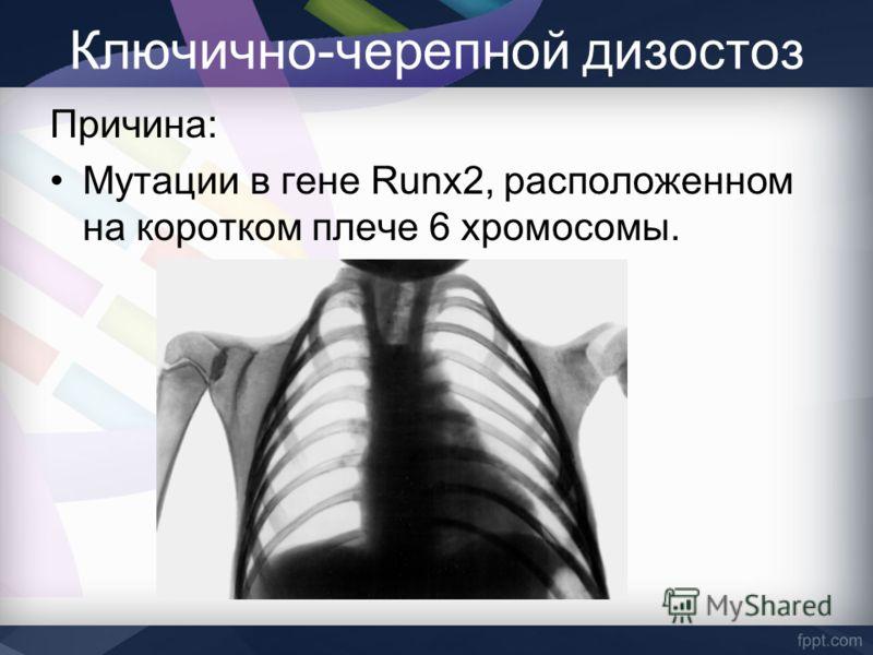Ключично-черепной дизостоз Причина: Мутации в гене Runx2, расположенном на коротком плече 6 хромосомы.