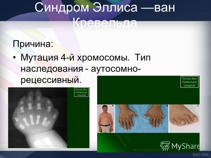Синдром Эллиса ван Кревельда Причина: Мутация 4-й хромосомы. Тип наследования - аутосомно- рецессивный.