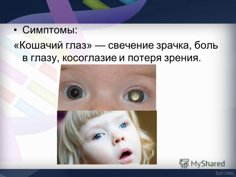 Симптомы: «Кошачий глаз» свечение зрачка, боль в глазу, косоглазие и потеря зрения.