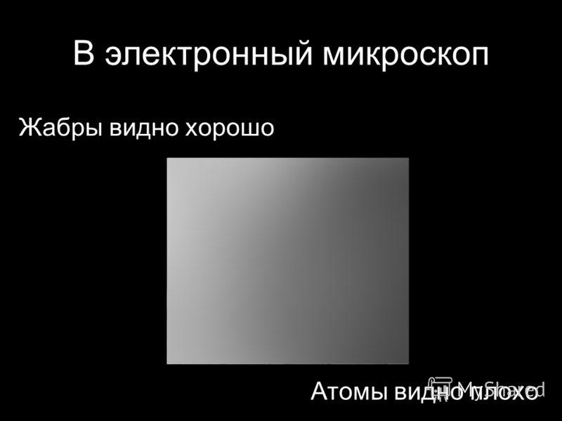 В электронный микроскоп Жабры видно хорошо Атомы видно плохо