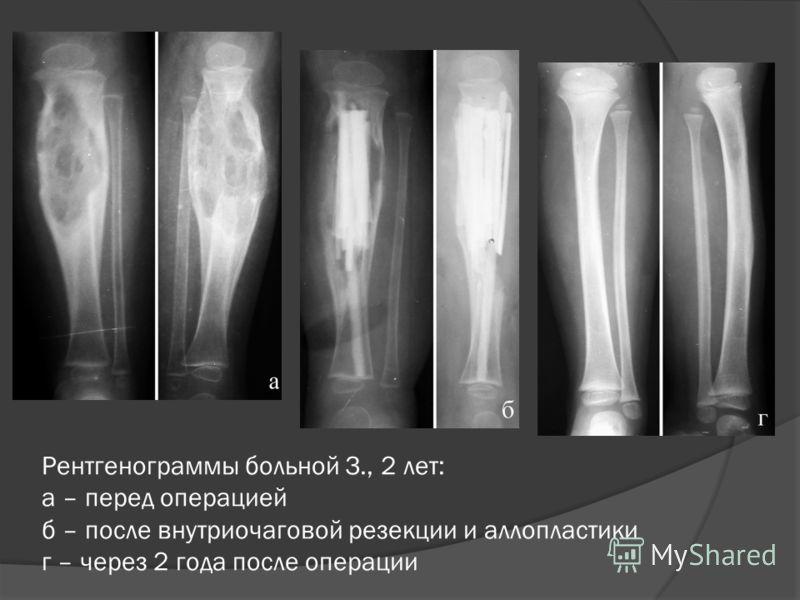 Рентгенограммы больной З., 2 лет: а – перед операцией б – после внутриочаговой резекции и аллопластики г – через 2 года после операции