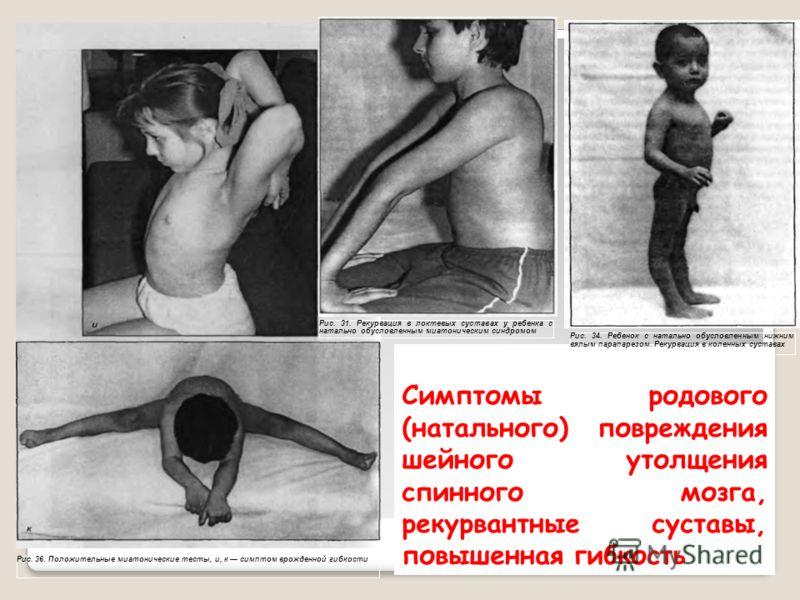 Симптомы родового (натального) повреждения шейного утолщения спинного мозга, рекурвантные суставы, повышенная гибкость Рис. 36. Положительные миатонические тесты, и, к симптом врожденной гибкости Рис. 31. Рекурвация в локтевых суставах у ребенка с на
