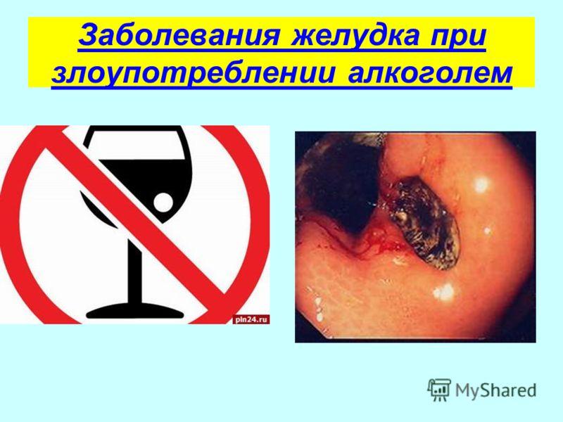 Заболевания желудка при злоупотреблении алкоголем