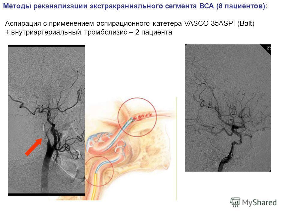 Методы реканализации экстракраниального сегмента ВСА (8 пациентов): Аспирация с применением аспирационного катетера VASCO 35ASPI (Balt) + внутриартериальный тромболизис – 2 пациента