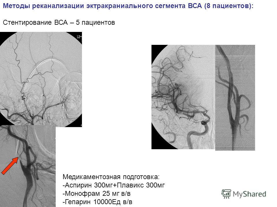 Методы реканализации экстракраниального сегмента ВСА (8 пациентов): Стентирование ВСА – 5 пациентов Медикаментозная подготовка: -Аспирин 300мг+Плавикс 300мг -Монофрам 25 мг в/в -Гепарин 10000Ед в/в