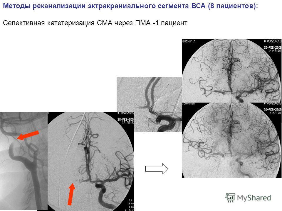 Методы реканализации экстракраниального сегмента ВСА (8 пациентов): Селективная катетеризация СМА через ПМА -1 пациент