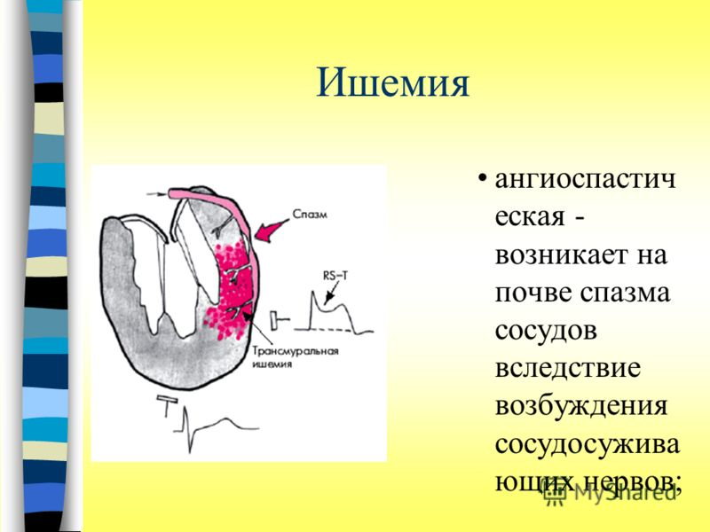 Ишемия ангиоспастич еская - возникает на почве спазма сосудов вследствие возбуждения сосудосужива ющих нервов;