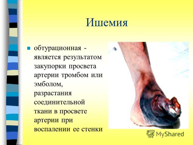 Ишемия n обтурационная - является результатом закупорки просвета артерии тромбом или эмболом, разрастания соединительной ткани в просвете артерии при воспалении ее стенки