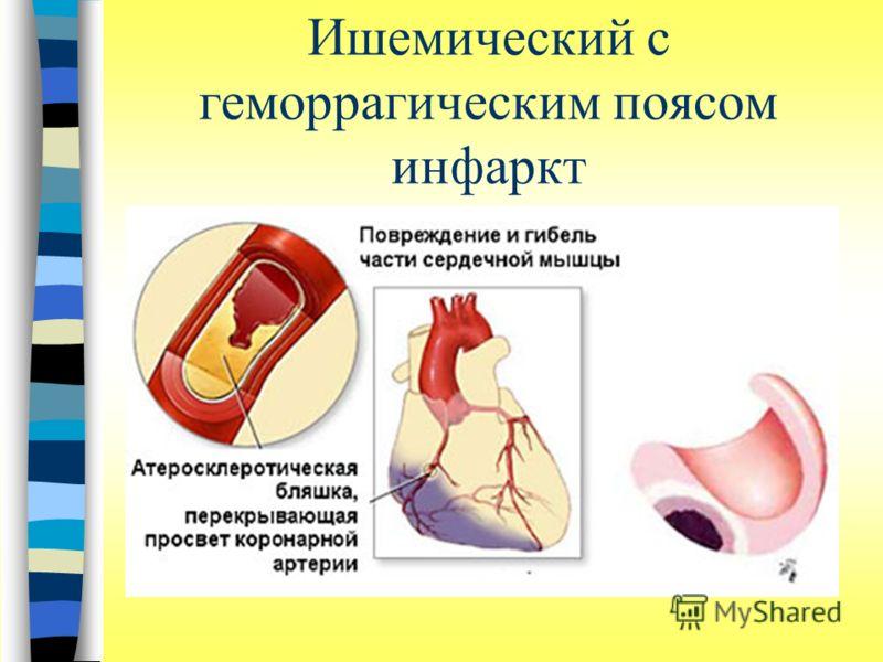 Ишемический с геморрагическим поясом инфаркт
