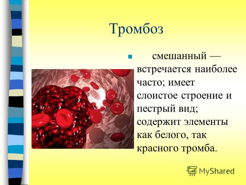 Тромбоз смешанный встречается наиболее часто; имеет слоистое строение и пестрый вид; содержит элементы как белого, так красного тромба.