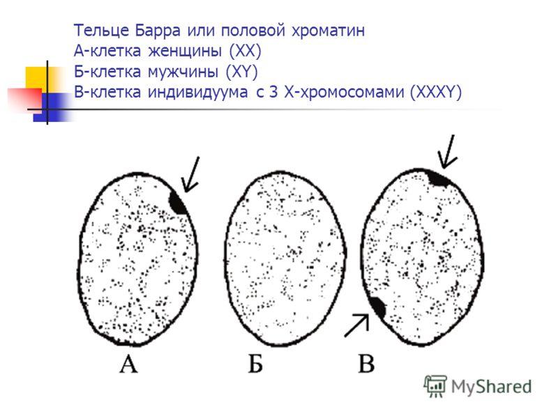 Тельце Барра или половой хроматин А-клетка женщины (ХХ) Б-клетка мужчины (ХY) В-клетка индивидуума с 3 Х-хромосомами (XXXY)