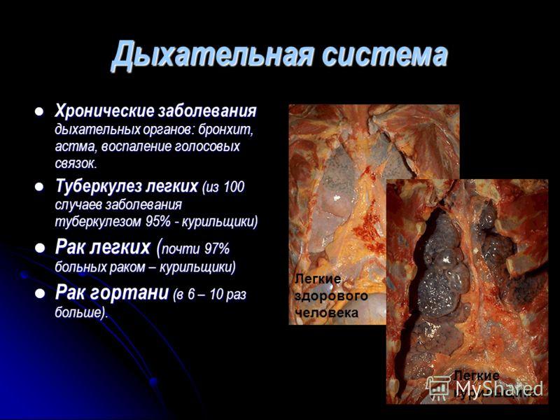 Дыхательная система Хронические заболевания дыхательных органов: бронхит, астма, воспаление голосовых связок. Туберкулез легких (из 100 случаев заболевания туберкулезом 95% - курильщики) Рак легких (почти 97% больных раком – курильщики) Рак гортани (