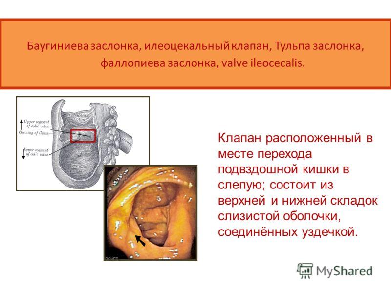 Баугиниева заслонка, илеоцекальный клапан, Тульпа заслонка, фаллопиева заслонка, valve ileocecalis. Клапан расположенный в месте перехода подвздошной кишки в слепую; состоит из верхней и нижней складок слизистой оболочки, соединённых уздечкой.