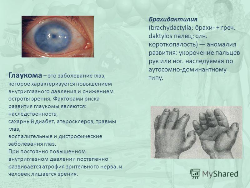 Брахидактилия (brachydactylia; брахи- + греч. daktylos палец; син. короткопалость) аномалия развития: укорочение пальцев рук или ног. наследуемая по аутосомно-доминантному типу. Глаукома – это заболевание глаз, которое характеризуется повышением внут