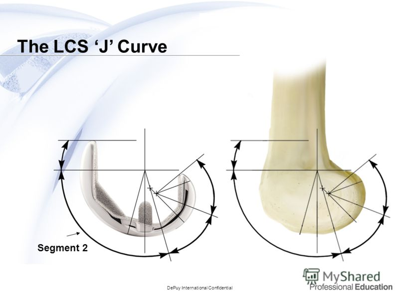 DePuy International Confidential Segment 2 The LCS J Curve