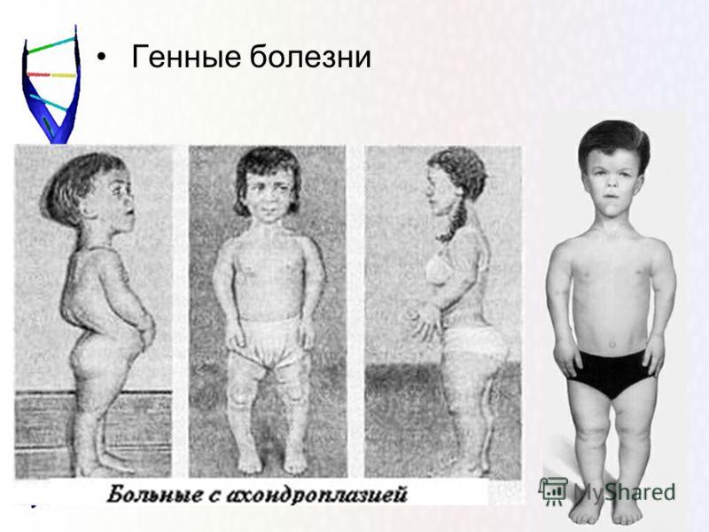 Генные болезни