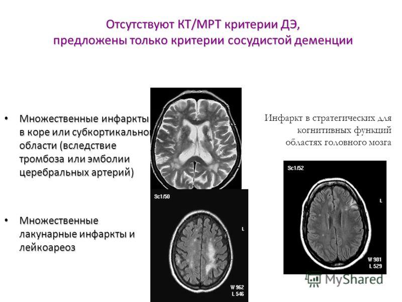 Отсутствуют КТ/МРТ критерии ДЭ, предложены только критерии сосудистой деменции Множественные инфаркты в коре или субкортикальной области (вследствие тромбоза или эмболии церебральных артерий) Множественные инфаркты в коре или субкортикальной области