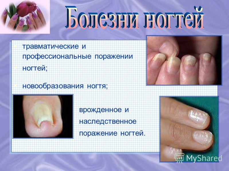 инфекционные (грибковые); онихии (различные поражения ногтей) и паронихии (поражения ногтевых валиков) при кожных заболеваниях; поражения ногтя при нервных, эндокринных и других болезнях организма; инфекционные (грибковые); онихии (различные поражени