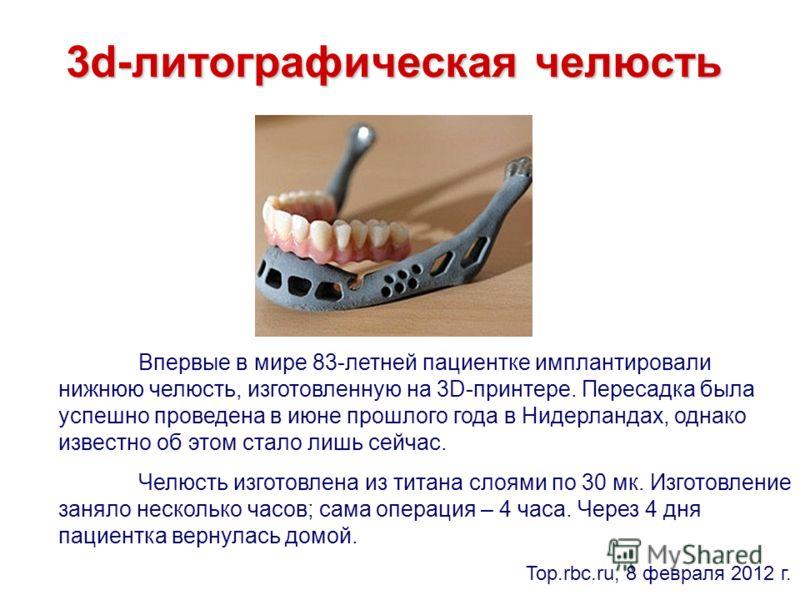 3d-литографическая челюсть Впервые в мире 83-летней пациентке имплантировали нижнюю челюсть, изготовленную на 3D-принтере. Пересадка была успешно проведена в июне прошлого года в Нидерландах, однако известно об этом стало лишь сейчас. Челюсть изготов
