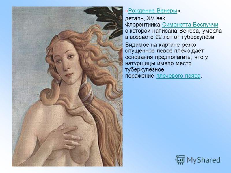«Рождение Венеры»,Рождение Венеры деталь, XV век. Флорентийка Симонетта Веспуччи, с которой написана Венера, умерла в возрасте 22 лет от туберкулёза. Симонетта Веспуччи Видимое на картине резко опущенное левое плечо даёт основания предполагать, что у