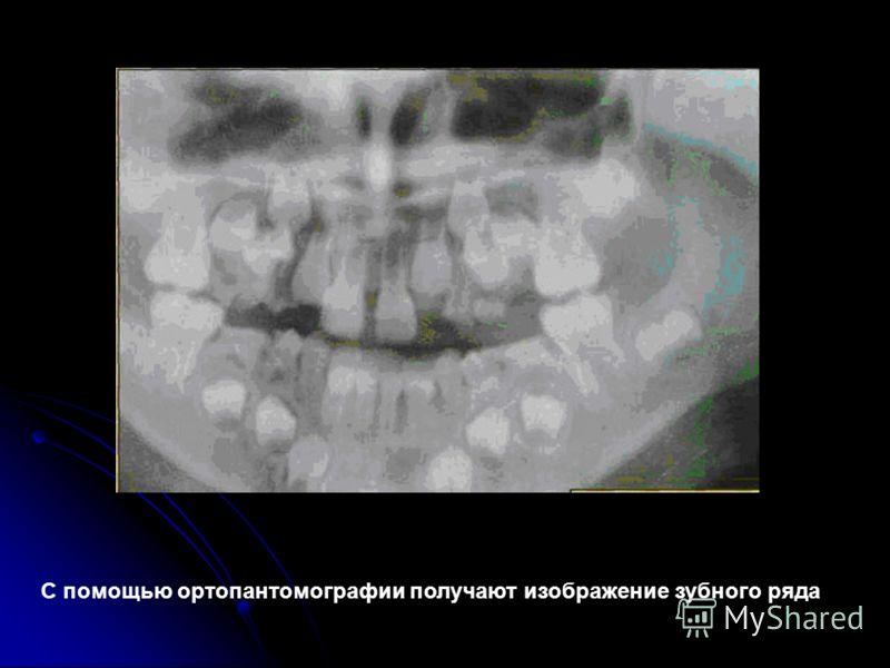 С помощью ортопантомографии получают изображение зубного ряда