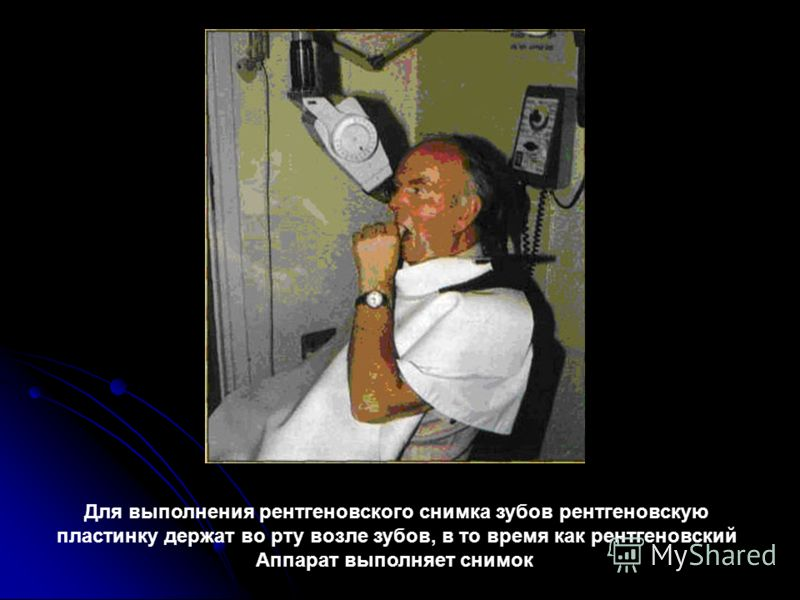 Для выполнения рентгеновского снимка зубов рентгеновскую пластинку держат во рту возле зубов, в то время как рентгеновский Аппарат выполняет снимок