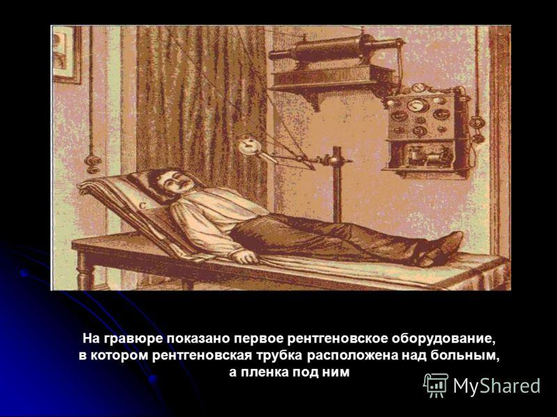 На гравюре показано первое рентгеновское оборудование, в котором рентгеновская трубка расположена над больным, а пленка под ним