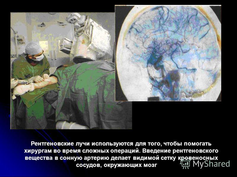 Рентгеновские лучи используются для того, чтобы помогать хирургам во время сложных операций. Введение рентгеновского вещества в сонную артерию делает видимой сетку кровеносных сосудов, окружающих мозг