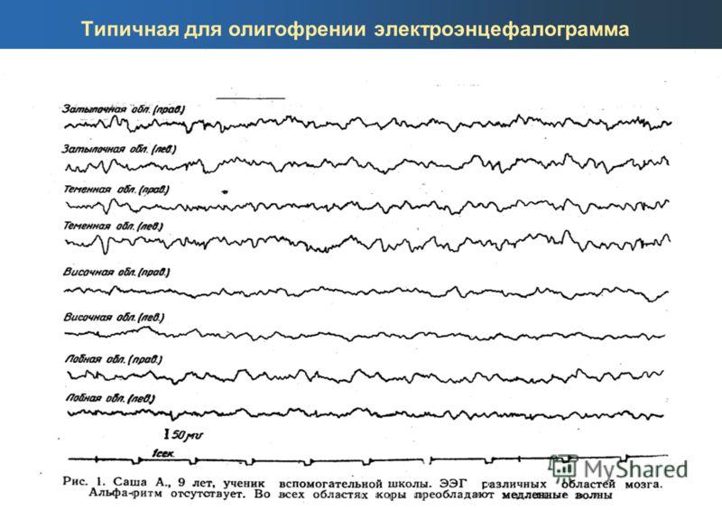 Типичная для олигофрении электроэнцефалограмма