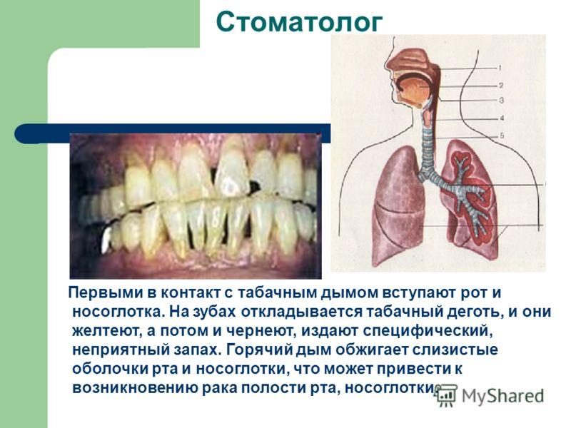 Стоматолог Первыми в контакт с табачным дымом вступают рот и носоглотка. На зубах откладывается табачный деготь, и они желтеют, а потом и чернеют, издают специфический, неприятный запах. Горячий дым обжигает слизистые оболочки рта и носоглотки, что м