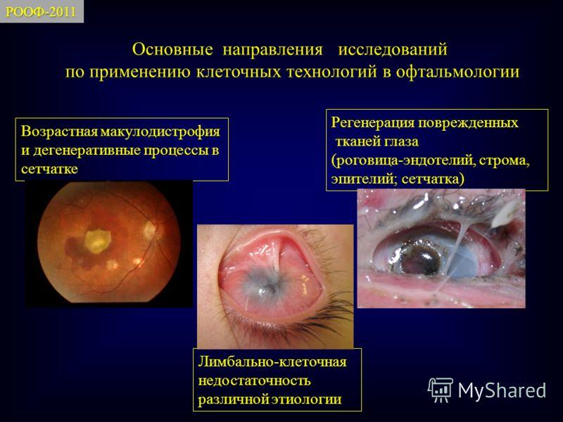 Основные направления исследований по применению клеточных технологий в офтальмологии Возрастная макулодистрофия и дегенеративные процессы в сетчатке Регенерация поврежденных тканей глаза (роговица-эндотелий, строма, эпителий; сетчатка) Лимбально-клет