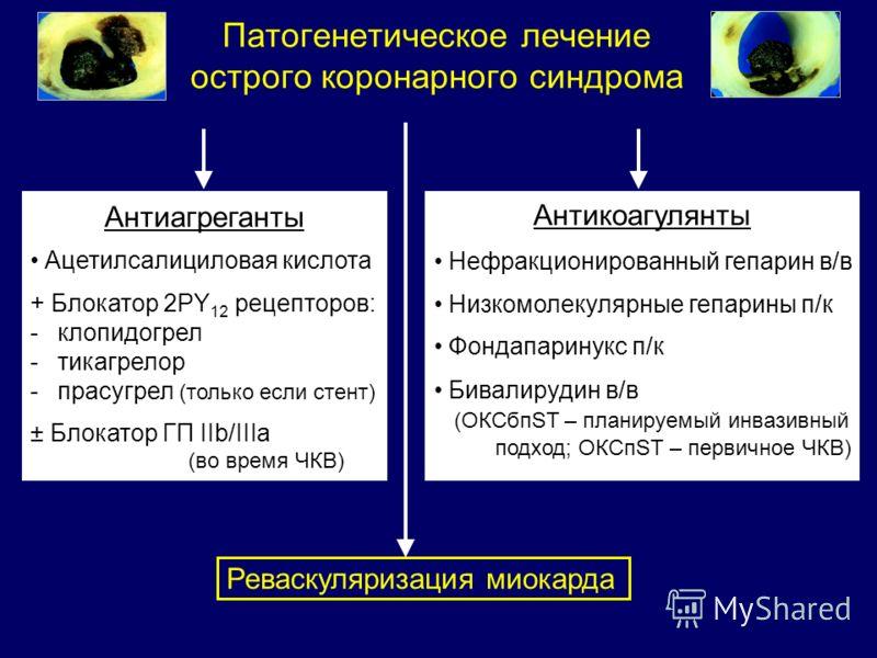 Патогенетическое лечение острого коронарного синдрома Антиагреганты Ацетилсалициловая кислота + Блокатор 2PY 12 рецепторов: -клопидогрел -тикагрелор -прасугрел (только если стент) ± Блокатор ГП IIb/IIIa (во время ЧКВ) Антикоагулянты Нефракционированн