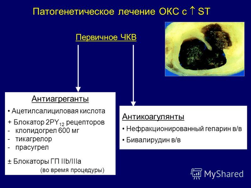 Патогенетическое лечение ОКС с ST Первичное ЧКВ Антиагреганты Ацетилсалициловая кислота + Блокатор 2PY 12 рецепторов -клопидогрел 600 мг -тикагрелор -прасугрел ± Блокаторы ГП IIb/IIIa (во время процедуры) Антикоагулянты Нефракционированный гепарин в/