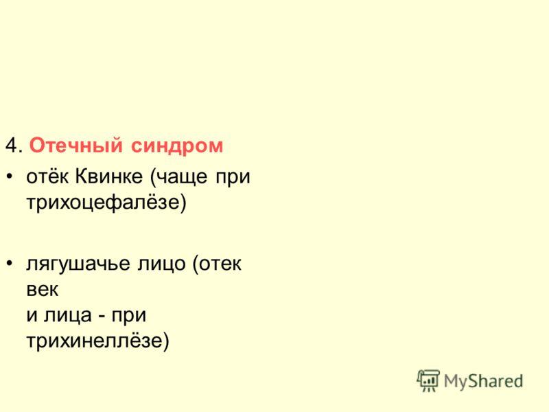4. Отечный синдром отёк Квинке (чаще при трихоцефалёзе) лягушачье лицо (отек век и лица - при трихинеллёзе) Отек Квинке